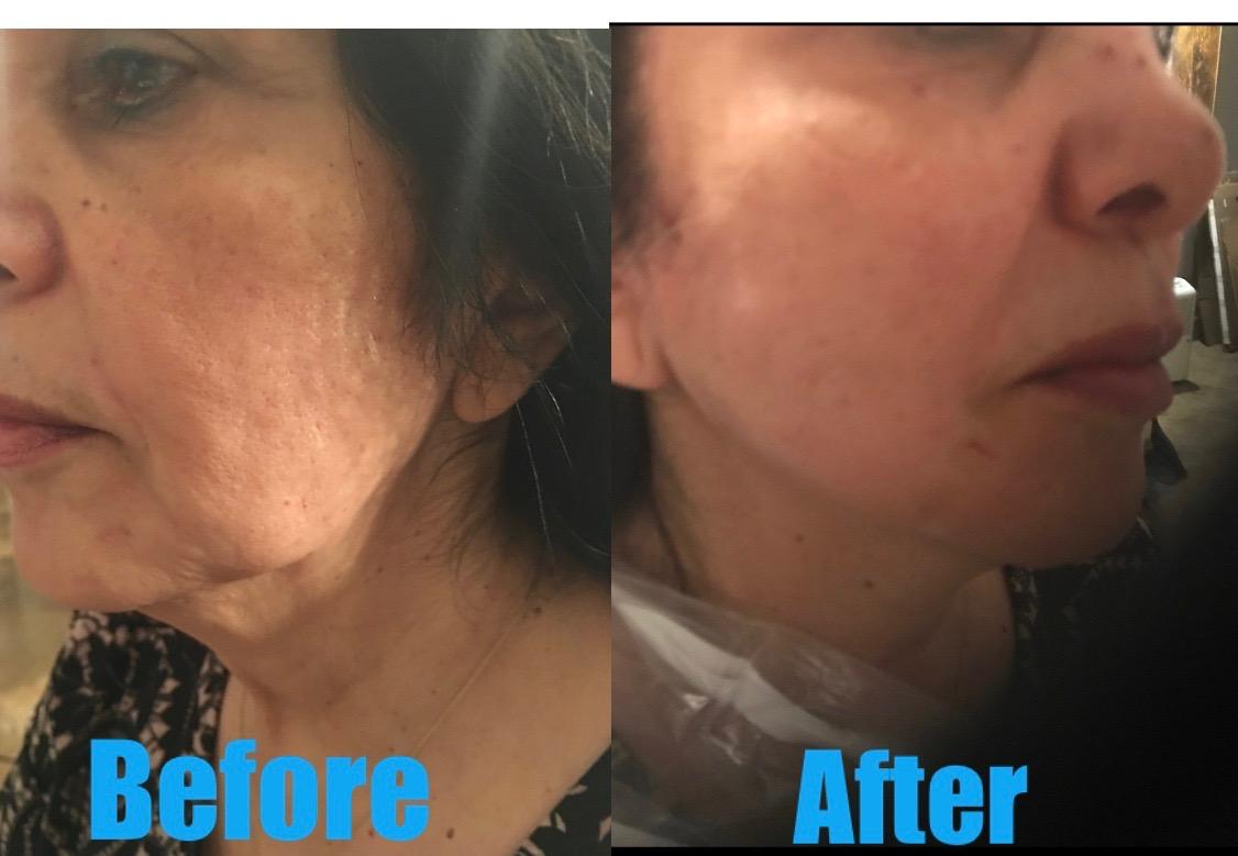 Tratamiento Facial Arrugas Atlanta Belleza