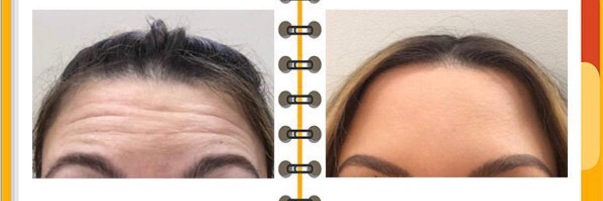 Tratamientos Arrugas Atlanta